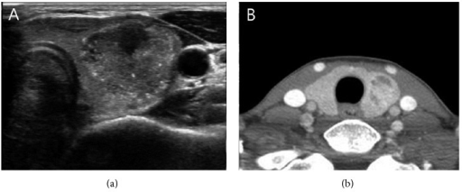 44-year-old woman with papillary thyroid carcinoma without extrathyroidal extension. On contrast to the US finding which shows the tumor closely attached to the capsule, CT findings revealed the complete parenchymal envelop around the tumor.