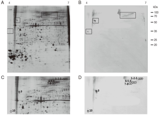 Representative 2-DE images of the whole body proteins from unfed female ticks of H. longicornis. (A) Silver stained gel. (B) Immunoblot probed with polyclonal antibodies against H. longicornis. Proteins (240 μg) were focused on pH 4-7 IPG strips (13 cm) and were then separated by SDS/12.5% PAGE. Reference molecular masses are indicated on the right. 2-DE immunoblot shows the antigenic spots revealed by a pool of sera from rabbits experimentally infested with H. longicornis. The proteins of interest are marked in the image (rectangles). (C, D) Magnifications of panels A and B. In D, antigenic spots are indicated by black numbered circles and are equivalent to the proteins identified in panel C.