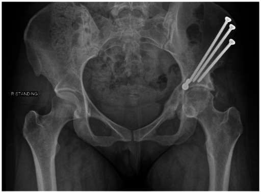A postoperative radiograph of a periacetabular osteotomy secured with screws.