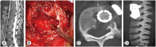 (A) Preoperative sagittal magnetic resonance imaging showing D12 fracture with retropulsed fragment. (B) Operative area of the corpectomy. (C) Axial computed tomography (CT) showing adequate removal after anterior column reconstruction. (D) Sagittal CT reconstruction after anterior column reconstruction.