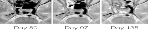 MRI showing the evolution of the right ICA (arrow) infiltration at the level of cavernous sinus. On day 80 there is no visible infiltration and vessel walls are normal. On day 97, vessel walls are thick and the flow in the ICA seems to be slower. On day 135, the whole right ICA is occluded by non-enhancing material which was later proven to be of fungal origin.