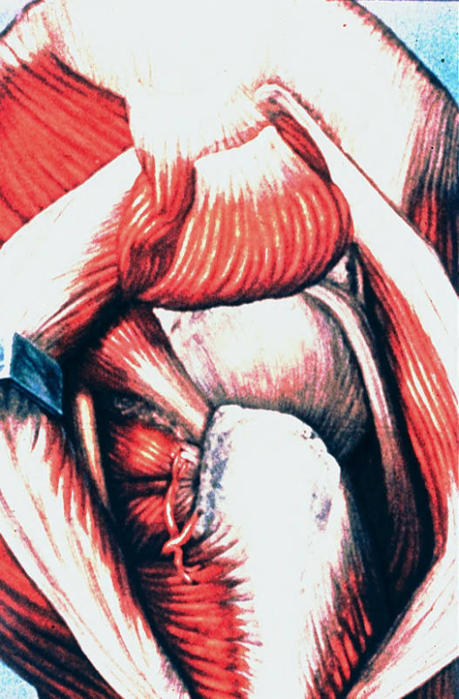 synovial trochanteric bursa; gluteus maximus muscle; gluteus medius muscle; greater trochanter