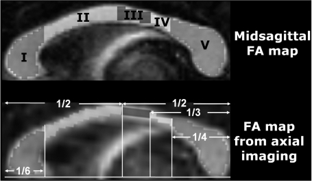 Five regions of interest. Prefrontal (I), premotor and supplementary motor (II), motor (III), sensory (IV) and parietal, temporal and occipital regions (V) on mid-sagittal fractional anisotropy (FA) map (A) and the fractional anisotropy map from axial imaging (B).