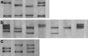 PCR-SSCP analysis of MICB allele. a Three distinct banding patterns were observed in exon 2. b Four distinct banding patterns were observed in exon 3. c Only two distinct banding patterns were observed in exon 4. Banding patterns with one or two lanes showed homozygosis, while three or four lanes showed heterozygosis