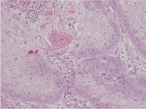 Histologically, the tumor includes papilliform-acanthosis, a number of cancer pearls, and individual cell keratinization.