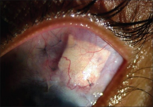 Cadaveric scleral graft covering the tube of the Ahmed glaucoma valve