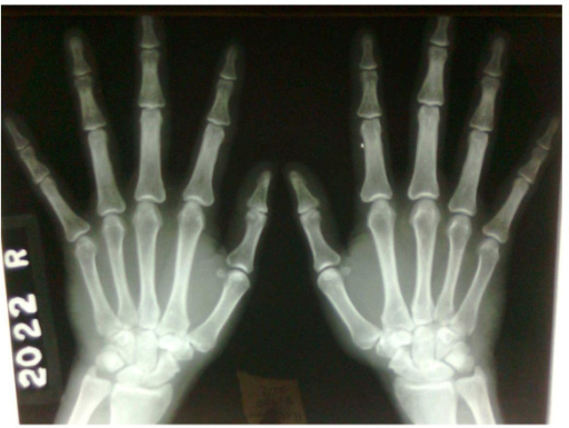 X-ray of hands.