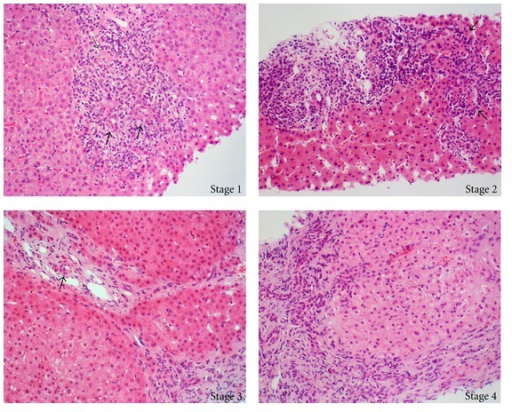 Histological staging in a representative case of a patient with primary biliary. Stage 1 reveals duct-centred inflammation showing chronic nonsuppurative destructive cholangitis (black arrows). A tiny granuloma is also seen (grey arrow). Stage 2 shows portal enlargement (arrows) with bile ductular reaction and inflammatory cell infiltration. Stage 3 is characterized by fibrous scaring bridging portal tracts with occasional foci of bile duct loss (no bile duct identified around an artery indicated by arrow). Stage 4 shows cirrhotic transformation.