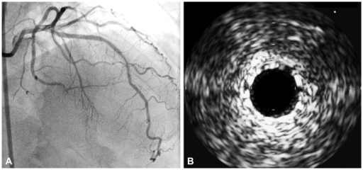 Coronary angiogram (A) and intravascular ultrasound (B) after everolimus-eluting stent implantation (3.0×24 mm; Promus Element®, Boston Scientific, India). A: no residual stenosis with good distal flow. B: good stent apposition.
