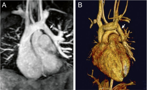 Contrast-enhanced magnetic resonance angiography. 9-year-old patient with partially anomalous pulmonary venous return of the left upper pulmonary vein (arrow) to the leftward aspect of the left innominate vein. Contrast-enhanced magnetic resonance angiogram shown in a coronal plane using a sub-volume maximal intensity projection (A) and volume rendering (B).