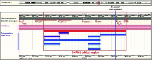 Exact localization of the chromosome 7 breakpoint between genes SHFM1 and DLX6. The red frame indicates the critical region of the SHFM1-syndrome based on cases with deletions, inversions and breakpoints. Pink bars indicate patients with deletions, violet bars indicate inversions and blue bars translocation regions which were not mapped to the basepair level. Patient data were retrieved from the Decipher database (https://decipher.sanger.ac.uk), the data in this image are based on the Ensembl Genome Browser, Release 57, hg19).