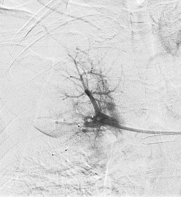 Final angiogram post embolisation demonstrating absence of filling of the pseudoaneurysm. The end markers of the two Amplazter plugs are visible close to the tip of the guide catheter. There is preservation of an adjacent pulmonary segmental artery.
