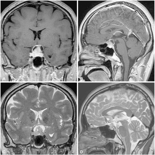 Preoperative magnetic resonance imaging shows a heterogeneously enhanced mass involving the sella in a T1-weighted gadolinium-enhanced coronal (A) and sagittal view (B). T2-weighted coronal (C) and sagittal (D) images reveals solid and cystic components of the tumor with compression of an optic apparatus.