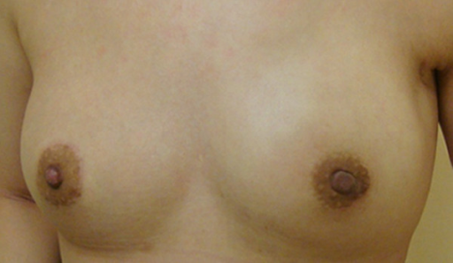 Postoperative photograph of patient 26. This patient had centrally located breast cancer arising from a fibroadenoma diagnosed before surgery. She was treated with endoscopically assisted nipple-sparing mastectomy combined with immediate breast reconstruction with a gel implant. Photograph was taken 3 months after surgery.