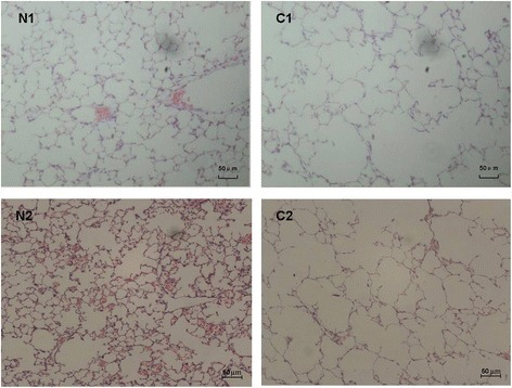 Lung histomorphology of C57BL/6 J mice induced by CS exposure and intraperitoneal injection of CSE (×100). Lung tissues of C57BL/6 J mice induced by CS exposure (C1) exhibited enlarged alveolar space, thinner alveolar septum, and destroyed alveolar wall when compared with those of the controls (N1). Lung tissues of C57BL/6 J mice induced by intraperitoneal injection of CSE (C2) also exhibited enlarged alveolar space, thinner alveolar septum, and destroyed alveolar wall when compared with those of the controls (N2). CS, cigarette smoke; CSE, cigarette smoke extract.