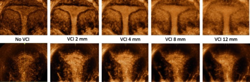 Coronal plane without Volume Contrast Imaging (VCI), with VCI 2 mm, VCI 4 mm, VCI 8 mm and VCI 12 mm. Note that using thicker VCI slices causes blurring, deteriorating the image quality.Upper row: regular endometrial-myometrial junction.Lower row: patient with adenomyosis. Note the irregular endometrial-myometrial junction (especially in the fundus).
