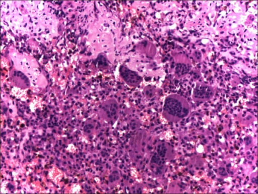 Pre-denosumab histopathological picture from the left proximal humerus (Case #1) showing typical features of any giant cell tumor, including numerous multi-nucleated giant cells.