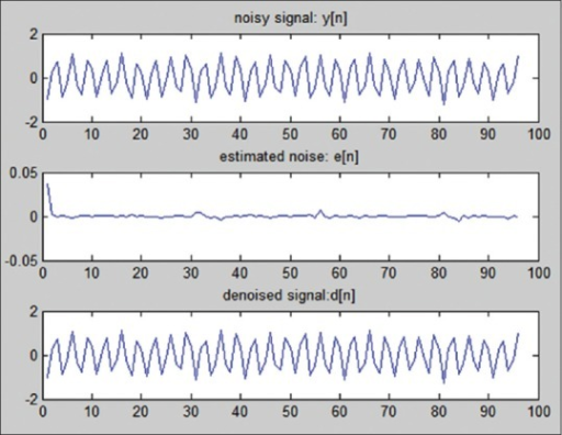 Noisy signal y[n], estimated noise e[n] (it is depicted bigger for the purpose of better representation), and denoised signal d[n], for P = 2