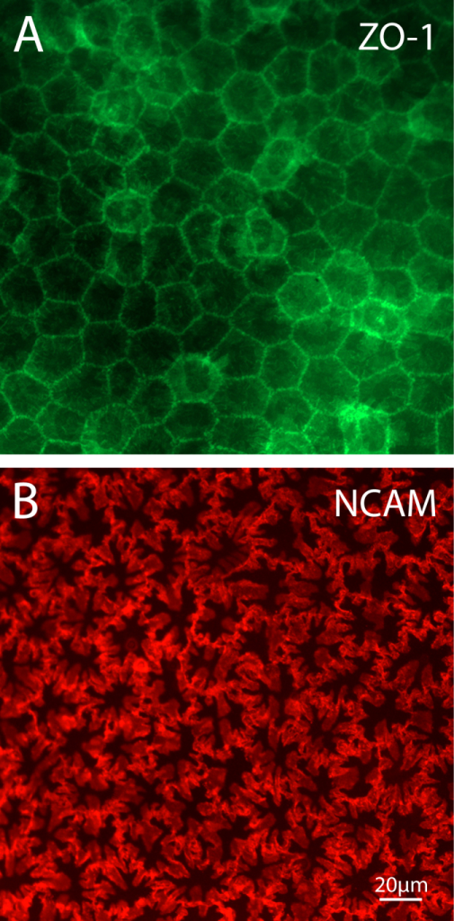 Immunolocalization of corneal endothelial cell lateral membrane markers by widefield fluorescence microscopy. A: Reaction of intact tissues with ZO-1 antibody highlights the regular polygonal outlines of cells seen at the level of tight junctions. B: Staining for the cell adhesion protein neural cell adhesion molecule (NCAM), however, reveals that much of the interacting surface is in the form of a complex arrangement of membrane folds. When viewing whole cells, this gives the impression of extensive membrane ruffling.