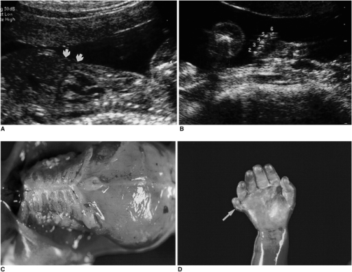 Short-rib dysplasia with polydactyly in a 21-week fetus.A. Sagittal image shows a narrow thorax and relatively protuberant abdomen (arrows).B. There is an extra digit (6) lateral to the fifth finger.C, D. Autopsy photographs show a narrow thorax with short ribs, a protuberant abdomen, micromelia, and postaxial polydactyly (arrow).