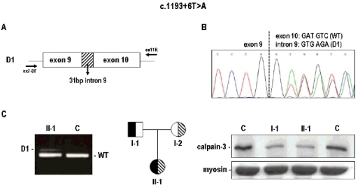 Splicing analysis and translational effect of the c. 1193+6 T>A variant. Panel A. Schematic representation of the aberrant splicing product (D1) generated by this variant, carrying the insertion of 31bp of intron 9 (dashed box) and resulting from the use of the alternative donor splice site D1. The arrows indicate the localization of the primers used. Panel B. Sequence from PCR amplification of muscle cDNA from a heterozygous mutant patient, showing the co-amplification of the WT and the alternately spliced mRNA (D1). Panel C. RT-PCR analysis of normal control (C) and a heterozygous mutant patient (II-1) who shows the WT product and one additional low-abundance product corresponding to the alternately spliced mRNA (D1). Family pedigree (case n. 7652) and western blot show that this intronic mutation (filled symbol) produced a reduction of calpain-3 protein of about 50% of control (C) after myosin normalization, as assessed in the muscle biopsy from both the heterozygous father (I-1) and his affected daughter (II-1), who was a compound heterozygote for a second missense mutation (p.E435K, dashed symbol).