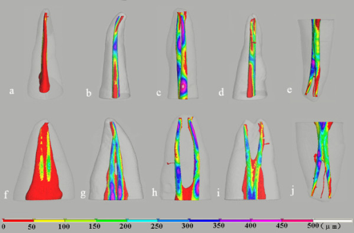 Color-coded distance images showing the changes in canal shape during instrumentation. The distance also indicates the amount of dentin removed. The images in the top and bottom row are viewed from buccolingual and mesiodistal directions, respectively. Letters indicate the same teeth as in Figure 1.