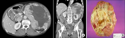 (A) Preoperative computed tomography (CT) findings. The CT image shows a huge, mixed solid and cystic mass lesion in the retroperitoneal space (axial view A-1, coronal view A-2). (B) Gross pathology image of the tumor showing a large, multilobulated, mass-like lesion measuring about 20×18.5×9 cm and weighing 1,700 g.