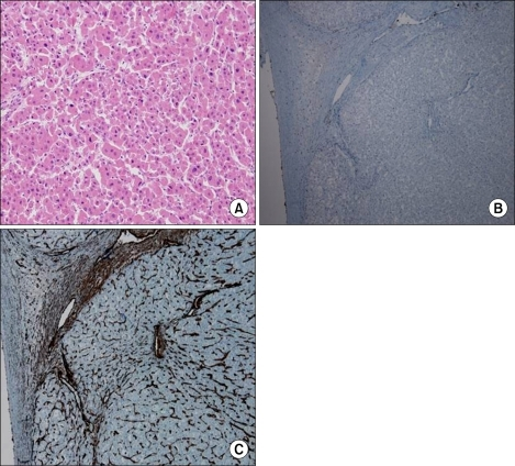 (A) Typical structure of an oncocytoma with abundant eosinophilic and granular cytoplasm (H&E, ×100). (B, C) Immunohistochemically, the neoplastic cells were positive for histone H3 phosphorylation and vimentin, respectively.