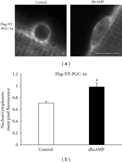 Activation of PKA increases nuclear Flag-NT-PGC-1α. (a) Representative images of Flag-NT-PGC-1α in a control fiber (control) and in another fiber after 1 h treatment with 1 mM dbcAMP in culture medium in the tissue culture incubator (dbcAMP). Scale bar, 10 μm. (b) The n/c fluorescence ratio of Flag-NT-PGC-1α in muscle fibers with (dbcAMP) or without (control) dbcAMP treatment. n/c values from 20 nuclei from 20 randomly selected fibers were averaged to give the mean value for each group. Asterisk indicates statistical significance between groups at P < 0.05.