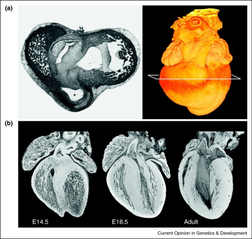 (a) An HREM image taken from an isolated chick embryo heart (HH stage 32) at the level of the developing atrioventricular junction, showing the range of grey levels associated with different tissue types. (b) 3D models of mouse embryo hearts isolated at E14.5 (when chamber septation is just completed) and E18.5 (shortly before birth) with that of the adult mouse. Models (not to scale) are eroded along a transverse plane from aortic valve to ventricular apex. This graphically illustrates the change in ventricular wall thickness and the mesh of spongy trabeculation that accompanies heart development.