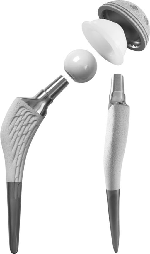 The anatomic cementless SPS stem is shown.