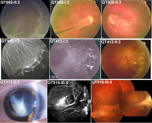 Ocular changes in affected individuals with an FZD4 or LRP5 mutation. The individual ID is indicated on the top left of each picture, which is the same as in Figure 2 and Table 2. Signs of FEVR included retinal detachment (top left), falciform retinal fold (top middle), temporal dragging of optic disc (top right), peripheral avascular zone and brush-like peripheral vessels (middle left), shell-like peripheral vessel terminatio and neovascularization (center), peripheral fibrovascular proliferation (middle right), lens dislocation (bottom left), peripheral exudates (bottom middle), temporal dragging of optic disc, and peripheral fibrous proliferation (bottom right).