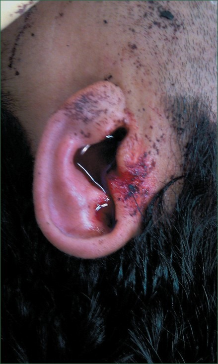 Active otorrhagia from the left ear | Open-i