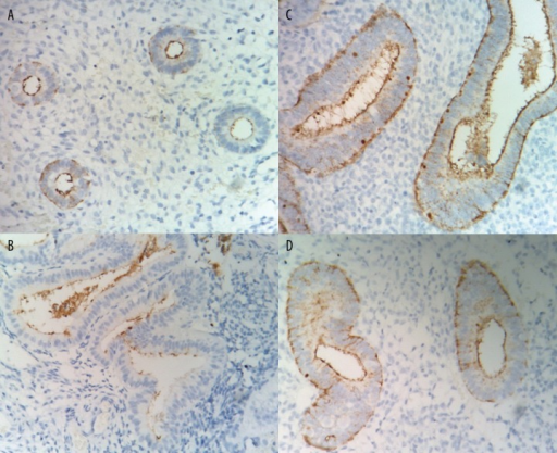 Endometrial staining of CA-125 in different groups of subjects (magnification × 400). (A) proliferative phase endometrium; (B) secretory phase endometrium; (C) non-functional endometrial polyps; (D) simple hyperplasia.