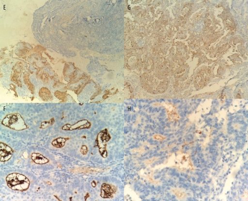 Endometrial staining of CA-125 in different groups of subjects (magnification × 400). (E) complex hyperplasia; (F), grade 1 endometrial carcinoma; (G), grade 2 endometrial carcinoma; and (H), grade 3 endometrial carcinoma.