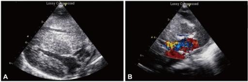 The echocardiography showed severe hypertrophy of both ventricles and ventricular septum (A) and color Doppler echocardiogram also demonstrated an accelerated flow at the outflow tract of the left ventricle (B).