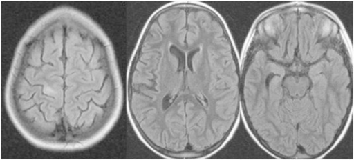 Preoperative MRI showing the alterations described above. Note that there is no hint of pathology on the contralateral hemisphere.