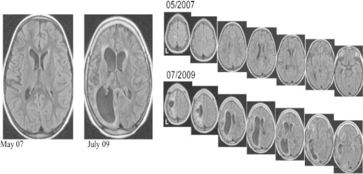 Control MRI showing progressive atrophy of the contralateral hemisphere (nonoperated).