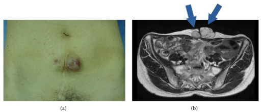(a) Smooth mass on the middle-left side of the cesarean median scar. (b) Pelvic MRI (T2 weighted image, axial section). MRI shows the tumor associated with cesarean section scar. The right side of the scar consists of solid components and the tumor at the left side of the scar is polycystic.