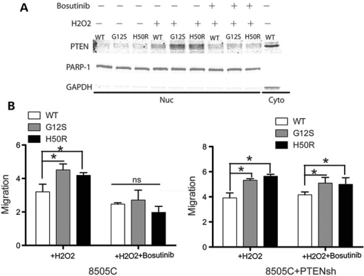 Accumulation of oxidized nuclear PTEN from SDHD-G12S and SDHD-H50R was abolished with bosutinib pretreatment in 8505C cells. (A) Nuclear PTEN was measured in 8505C cells transfected with SDHD-wild type, -G12S and -H50R, respectively, after H2O2 exposure with or without bosutinib pretreatment. (B) Wound healing migration rates normalization in papillary thyroid carcinoma (PTC) cell line 8505C cells transfected with SDHD-WT, -G12S, or -H50R, respectively, with/without Bosutinib treatment (left) and 8505C cells co-transfected with shPTEN and SDHD-WT, -G12S or H50R, respectively, with/without Bosutinib treatment (right). The results are the mean ± SE of four independent experiments with n = 5 in each condition. *P < 0.05, ns: not significant (P > 0.05).