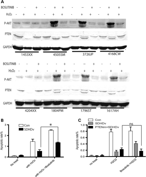 Bosutinib inhibits PTEN oxidation and induces apoptosis in CS patient LCL cells harboring either SDHD-G12S or H50R naturally occurring germline variants, but not in LCL cells with both SDHD variants and PTEN mutations. (A) Oxidized PTEN in LCLs with SDHD-G12S or SDHD-H50R variants. 1453XX and 4204XX are control LCLs; 4550SM, 3726JP, 1804PM and 1796ST are LCLs harboring germline SDHD-H50R; 4168CW and 1617AH are LCLs harboring germline SDHD-G12S. Experiments were performed three independent times. (B) Apoptotic rates in LCLs harboring either SDHD-G12S or H50R germline variants when exposed or not exposed to H2O2, with or without bosutinib (n = 6). The results are the mean ± SE of three independent experiments. (C) Apoptotic rates in LCLs harboring both SDHD variants and PTEN mutations (n = 3). The results are the mean ± SE of three independent experiments. *P < 0.05, ns: not significant (P > 0.05).
