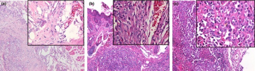 HE staining xenografted tumors in nude mice. (a) Tumors from N-nitrosopyrrolidine (NPYR) transformed pWPI H8 cells showed squamous cell carcionoma (SCC) with a better differentiation. (b) Tumors from NPYR transformed pWPI-hId H8 cells showed SCC with undifferentiated or low-grade differentiated type. (c) Tumors formed by SiHa cells showed SCC with undifferentiated type. Representative images (100× and 400× for the inserts) are shown.
