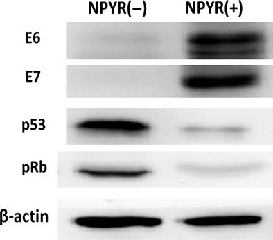 Evaluations of human papillomavirus E6, E7 and p53, and pRb during N-nitrosopyrrolidine-induced cell transformation. Total proteins from NPYR transformed or untreated H8 cells were subjected to 10% SDS-PAGE gels and followed by western blot. β-actin served as an input control.