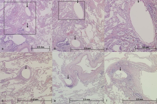 Histology of transplanted lungs of two patients (photomicrograph, haematoxylin and eosin stain). (a) Low power magnification of lung tissue demonstrating two device imprints (arrows) in the alveolar parenchyma. (b) Higher magnification of the boxed area in image (a) demonstrating the two device imprints in tissue. At this magnification, it is evident that there is a thin, compressed capsule of tissue around the imprints with no other significant inflammatory reaction present. This image also demonstrates the presence of interstitial fibrosis of alveolar septa along the left hand side of the image. (c) Higher magnification of the boxed area in image (b) demonstrating a closer view of the device capsule and the surrounding alveolar parenchyma. (d) Low power magnification of a single device imprint in the alveolar parenchyma (arrow). The imprint is surrounded by a well-organized fibrous capsule comprised of compressed, concentric rings of stroma. Pre-existing emphysema (enlarged alveolar spaces) is also evident in this image. (e) Low power magnification of a single device imprint (arrow) in the alveolar parenchyma adjacent to a pulmonary vein. (f) Low power magnification of a single device imprint in an area of more dense fibrous tissue. The device capsule contains a mild degree of inflammation. (a–c) Patient 1 year after LVR-coil treatment; (d–f) patient 4 years after LVR-coil treatment.