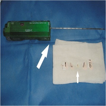 Bard Magnum tissue-cutting needle and the third generation automatic biopsy gun (big arrow); tissue strips obtained with CNB (small arrow).