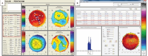 The screenshot of measurement in Pentacam. (A) The four refractive map. This map shows the anterior and posterior curvature and posterior astigmatism (red dotted area). Sagittal power, front and back elevation, and pachymetry were demonstrated in 4 separate graphics. (B) The screenshot for measurement of total corneal refractive power (TCRP). Several pupil centered zones with TCRP measurement are shown (red dotted area).
