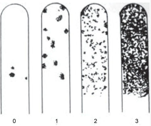 Assessment of S. mutans growth on the strips of Dentocult SM Strip mutans kit