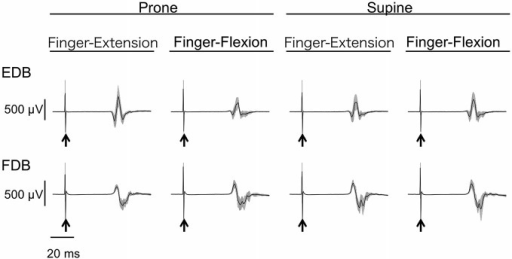 Typical example of MEP of toe extensor and flexor. Mean and SD of 20 trials for each task from one subject. The arrows indicate the timing of the TMS. The toe extensor is the extensor digitorum brevis (EDB) and the flexor is the flexor digitorum brevis (FDB).