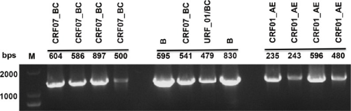 Amplification of pol gene fragment by nested PCR.Viral RNA extracted from plasma specimens of patients was first converted to cDNA and the pol gene fragment was amplified by nested PCR. Result of gel electrophoresis illustrated the nested PCR method was capable to amplify the pol gene fragment with high specificity from HIV-1 of various strains as indicated.