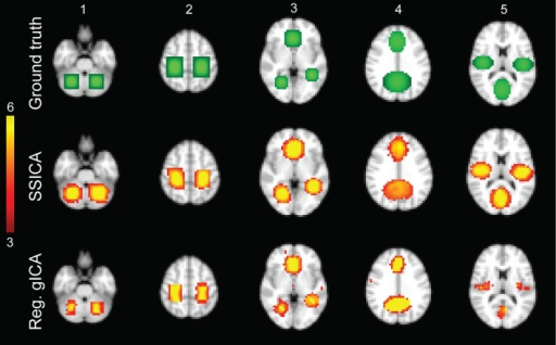 Hybrid fMRI data generation. Top row: the source patches used to generate the hybrid fMRI data set. From left to right, it illustrates the patches (or components), which are located in the cerebellum, sensorimotor area, anterior cingulate and lingual regions, paracingulate gyrus and precuneus, and bilateral opercular cortex and middle visual area. Middle and bottom rows show the t-statistics maps of those components, respectively, extracted by the SSICA and the regular time-concatenation gICA approach, which show the highest correlation with the ground truth patches. In this example, the 2 patches shown on columns 1 and 2 were specific to group-1, the 2 patches on columns 4 and 5 were specific to group-2 and the one on column 3 was shared between groups. The specific maps are generated using two-sample t-statistics, while the shared map is generated using one-sample t-statistics. The SSICA results are more similar to the ground truth specific patches compared to the regular gICA approach.